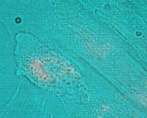 Ryc. 1 Spontaniczne wchłanianie DNA przez komórki i jądro komórek HFF1 (jasne pole połączone z czerwonym Cy-3)