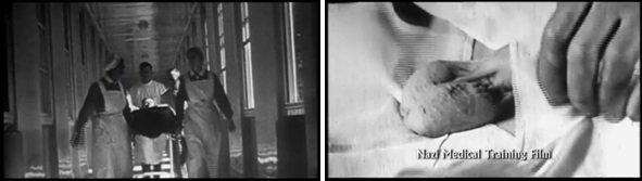 Nazistowski medyczny film szkoleniowy