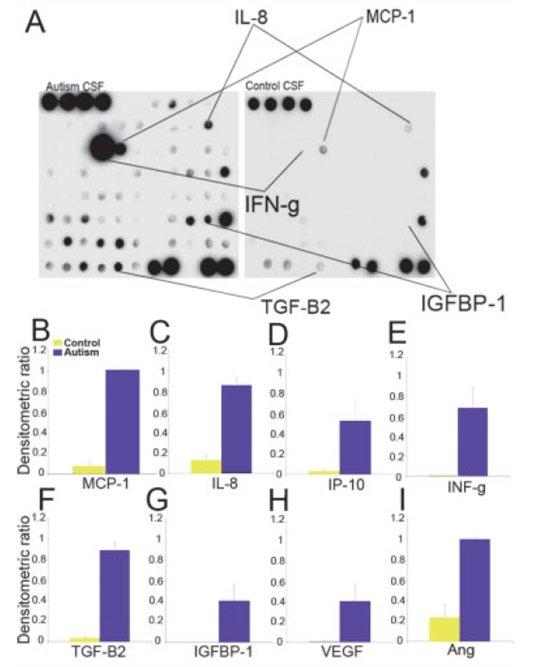 Profile cytokin w płynie mózgowo-rdzeniowym (CSF) pobranym od pacjentów austystycznych i kontrolnych