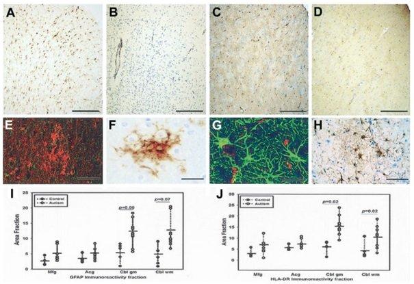Reakcje komórek glejowych w korze mózgowej pacjentów z autyzmem