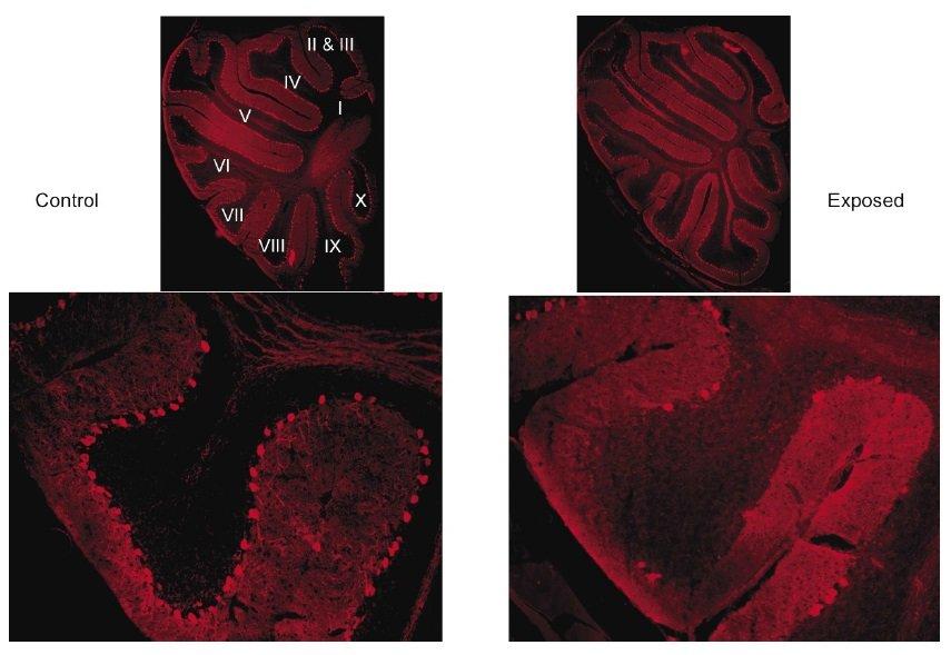 """Kontrolne i """"autystyczne"""" móżdżki myszy zabarwione barwnikiem wiążącym się z komórkami Purkinjego."""