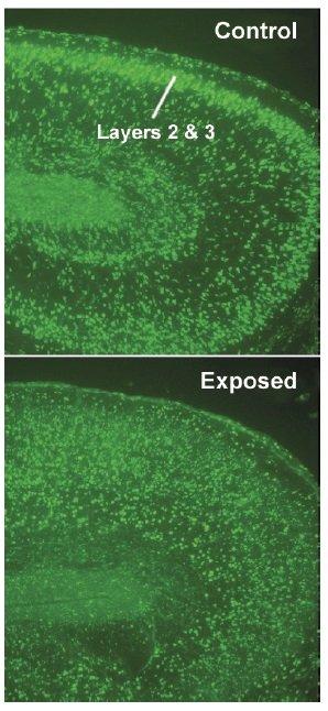 Neurony z wczesnego stadium rozwoju mózgu zostały oznaczone fluorescencyjnym zielonym barwnikiem.