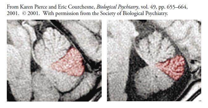 Skan MRI móżdżku kontrolnego dziecka (po lewej) i dziecka autystycznego (po prawej), z płacikami VI i VII w kolorze czerwonym