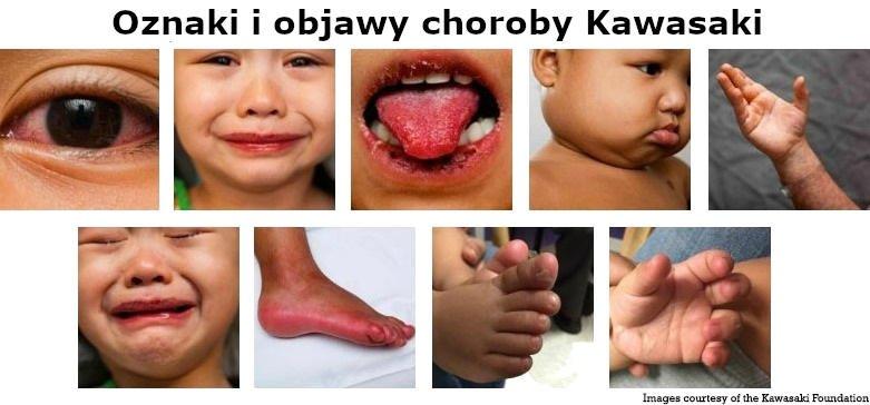 Oznaki i objawy choroby Kawasaki
