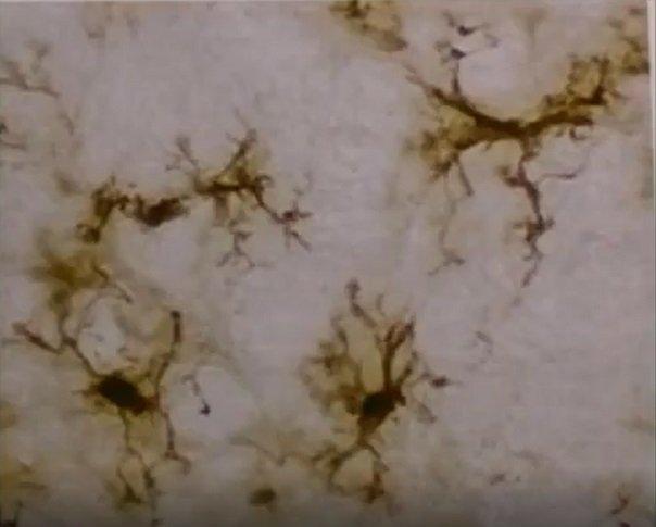 komórki mikrogleju w stanie spoczynku
