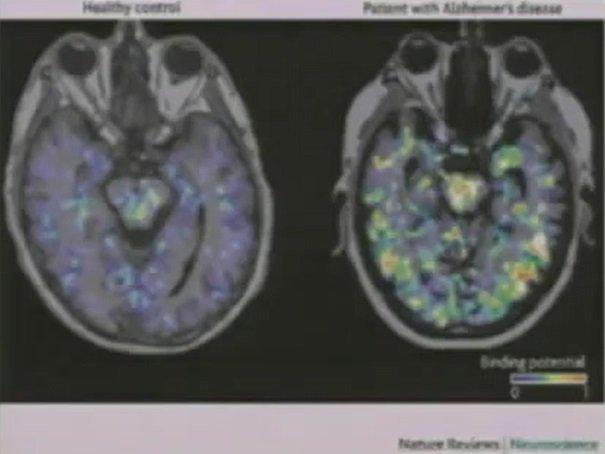 mózg osoby chorej na Alzheimera