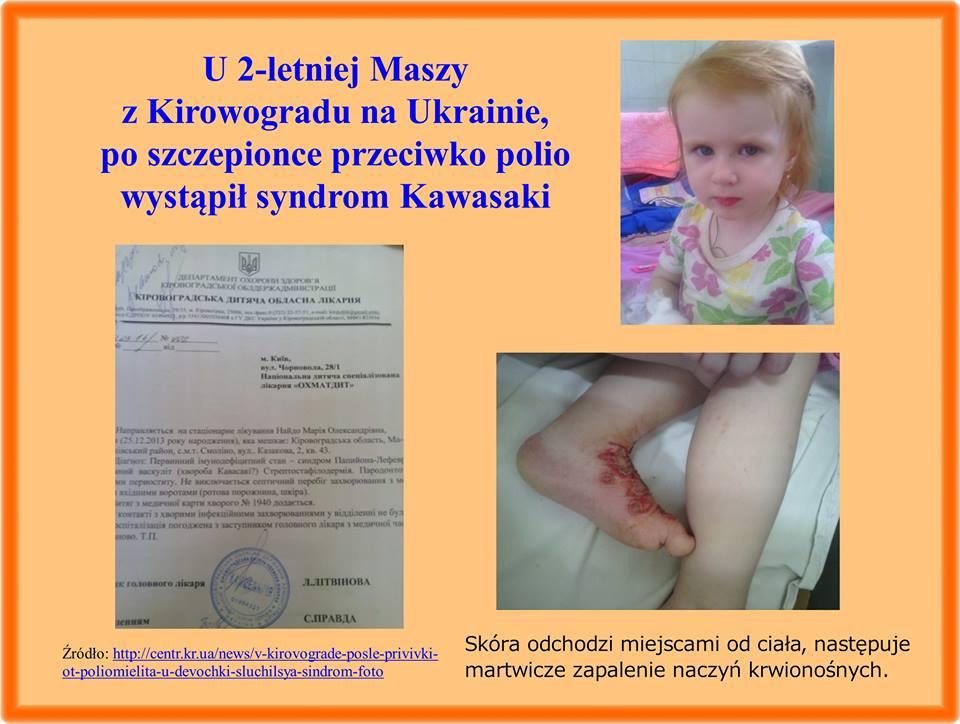 Choroba Kawasaki po szczepionce na polio