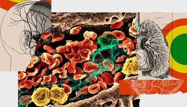Aby zapobiec trzem zgonom, terapia genowa na COVID zabija dwie osoby